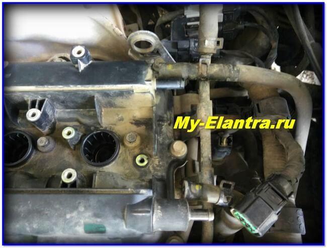 Замена прокладки клапанной крышки двигателя Элантра